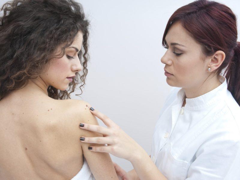Nowotwór skóry można wyleczyć