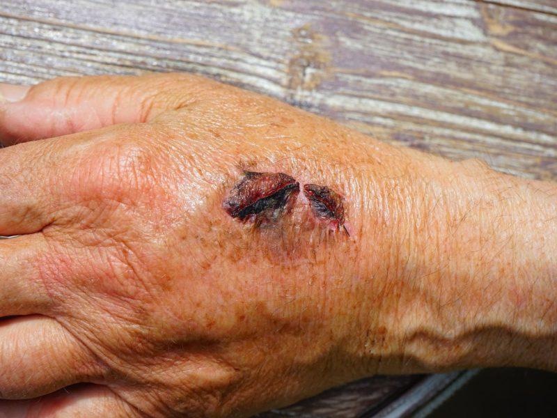 Trudno gojące się rany – dlaczego powstają i jak je leczyć?